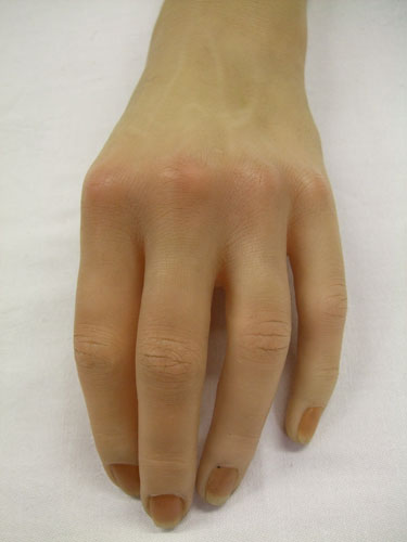 Woman's prosthetic left hand