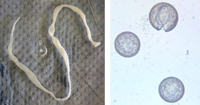 The tapeworms (left) ranged in size up to about 30 cm long and 4 mm in breadth. Their eggs (right) were about 70 um in diameter. Images: Neil Sargison